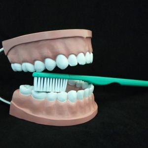 Giant Dental Care Model